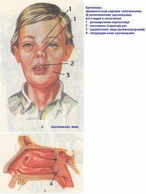 Аденоиды у детей. Симптомы, диагностика, удаление аденоидов-