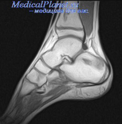Ахиллово сухожилие на ноге как лечить