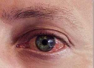 Аллергический конъюнктивит — лечение, симптомы у детей и взрослых