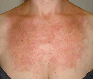 Аллергия на солнце — симптомы, лечение, причины