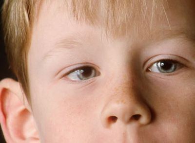 Амблиопия, или ленивый глаз