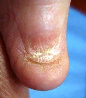 Анонихия как один из видов патологии ногтей