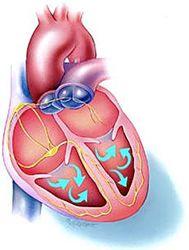 Аритмия сердца рецидив