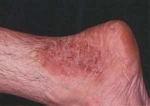 Атопический дерматит у взрослых, лечение, симптомы, причины возникновения