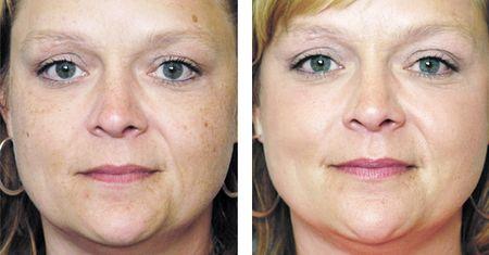 Безболезненное удаление пигментных пятен на лице