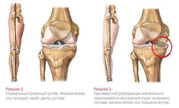 Безоперационное и хирургическое исправление кривизны ног