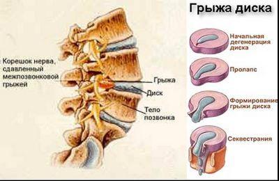 Безоперационное лечение межпозвоночной грыжи