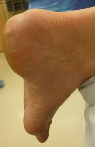 Боль в пятке: основные причины и способы лечения