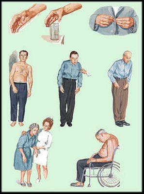 Болезнь паркинсона, причины, симптомы, лечение народными средствами