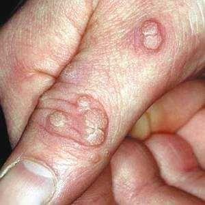 Бородавки на руках и пальцах: лечение, выведение, удаление