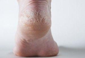 Что делать с огрубевшей кожей на пятках