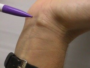 Что делать с шишкой под коленом
