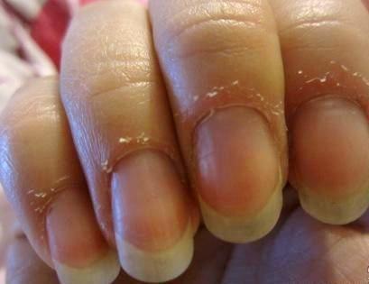 Что делать с сухой кожей и трещинами на пальцах рук