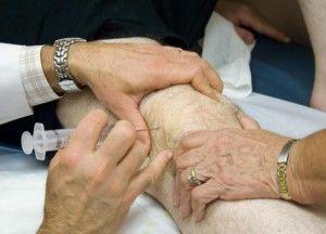 Что такое блокада коленного сустава