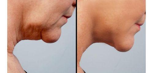 фото до и после лазерной липосакции