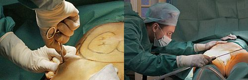 подача струи жидкости ход операции по липосакции