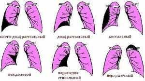 Что такое плеврит, его симптомы и лечение, почему появляется, какой прогноз