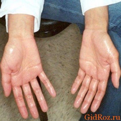 Некоторые люди, к сожалению, живут в постоянном страхе рукопожатий! А причина в том, что их коварный враг - гипергидроз!