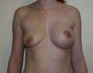 Что такое тубулярная грудь