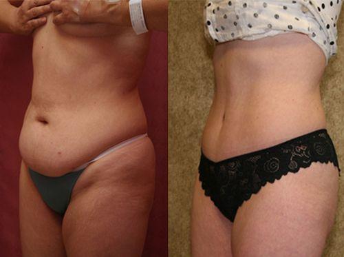 фото до и после вакуумной липосакции