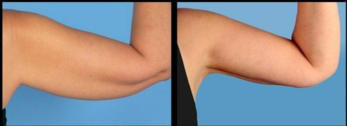 фото до и после Vaser липосакции