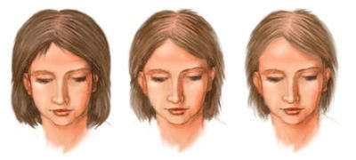 Что вызывает диффузное выпадение волос