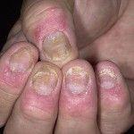 Лечение псориаза ногтя