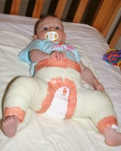 Дисплазия тазобедренных суставов у детей – это не приговор! Лечение патологии различными методами