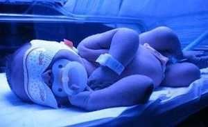 Для лечения желтушки новорожденных будут использовать светоодеяло