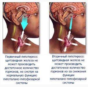 Гипотиреоз синдром