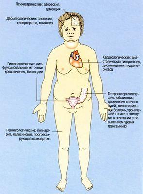 Гипотиреоз щитовидный