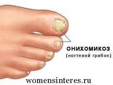 Грибок ногтей (микоз). Народные методы лечения ноготь