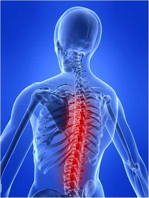 Грудной остеохондроз: лечение грудного остеохондроза