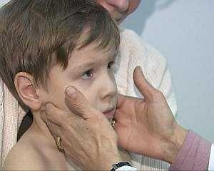 Инфекционный мононуклеоз у детей — симптомы, лечение, осложнения