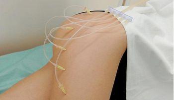Эффективна ли озонотерапия для похудения