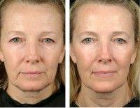 Эффективна ли желатиновая маска для лица от морщин