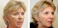 Эффективно ли мумие от морщин на лице
