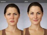 Эффективные маски из дрожжей от морщин на лице