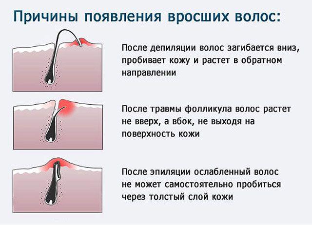 Как бороться с врастанием волос на ногах