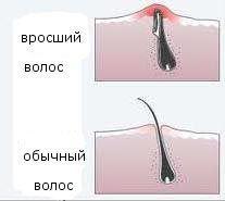 Как бороться с вросшими волосами в зоне бикини
