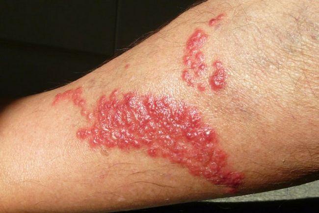 Как и чем можно лечить ожог медузы