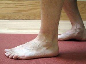 Как лечить растяжение связок стопы
