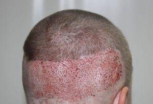 Как проводится бесшовная пересадка волос