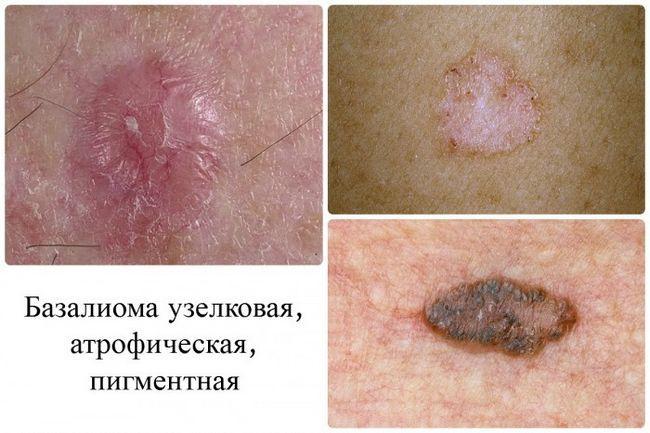 Как распознать рак кожи: первые признаки и симптомы