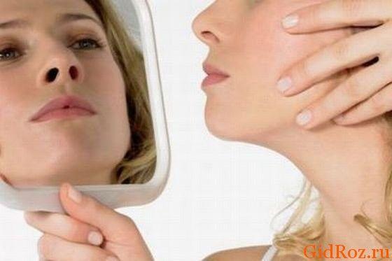 Как распознать сыпь при потнице у взрослых