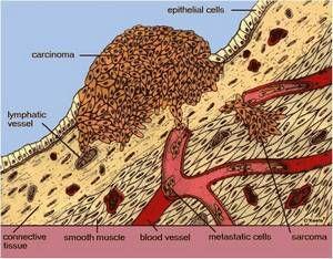 Как выявить и лечить болезнь боуэна?