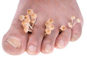 Как выявить и вылечить грибок между пальцами ног?