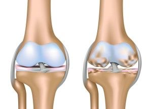 Как вылечить артроз коленных суставов
