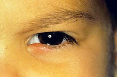 Как вылечить ячмень на глазу у ребенка ноготь
