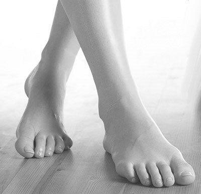Как вылечить потливость ног? алкоголь